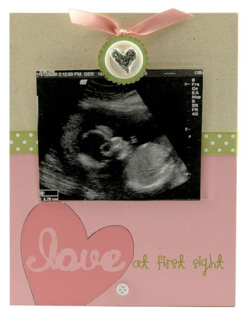 Charming Sonogram Photo Frame, a new baby joy captured - by Blue Sky ...